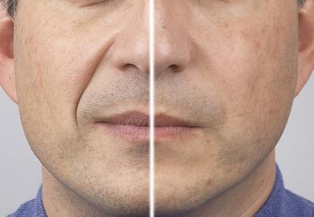 Hình ảnh trước và sau khi bệnh nhân được Bác sĩ điều trị nếp nhăn khóe miệng bằngTEOSYAL® RHA2
